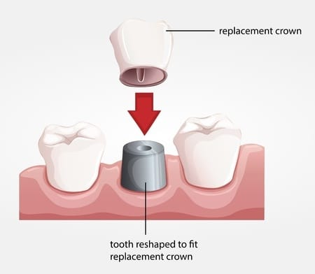 dental-tourism-crown