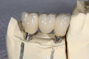 dental implants wesley chapel fl